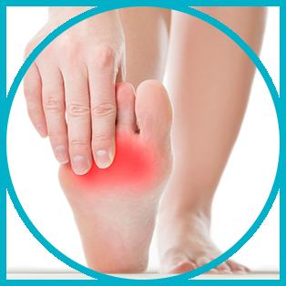 Peripheral Neuropathy Symptom - Foot